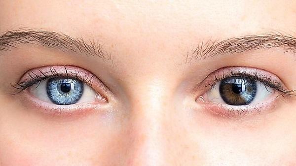 Màu mắt dị sắc tố - có 2 màu mắt khác nhau - màu mắt hiếm nhất thế giới