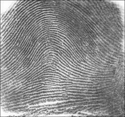 Chủng vân tay hiếm nhất thế giới - Arch